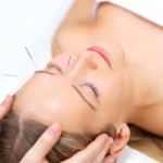 What is Acupuncture?